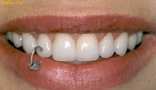 Ciudate - Piercing in dinti